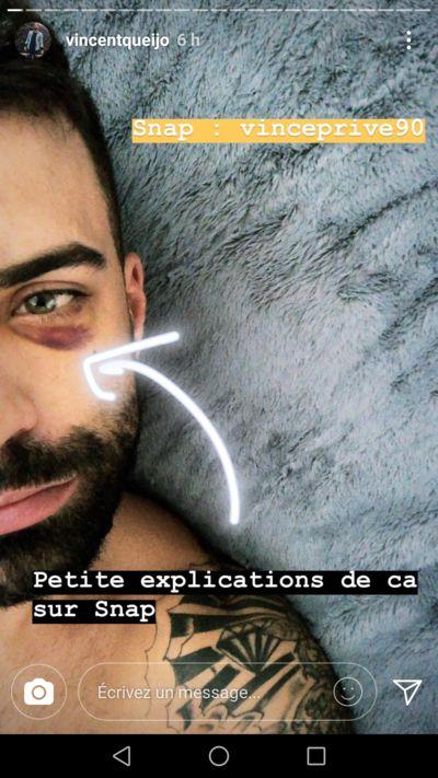 Vincent Queijo : Agressé par plusieurs personnes, il dévoile son coquard sur Snapchat