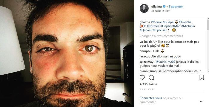 Gil Alma (Nos chers Voisins) : La photo de son visage déformé interpelle !