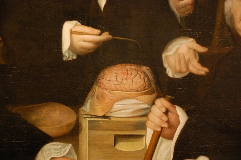 Nicolas Rijnenburg, The anatomy lesson of Dr Theodorus Hoogeveen