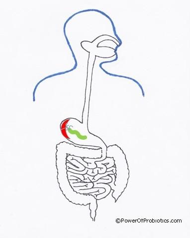 H pylori and Probiotics