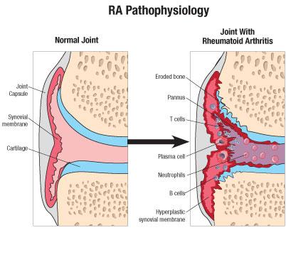 Image result for rheumatoid arthritis pannus