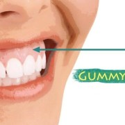 Kako rešiti problem spuštenih desni (Gummy smile)?