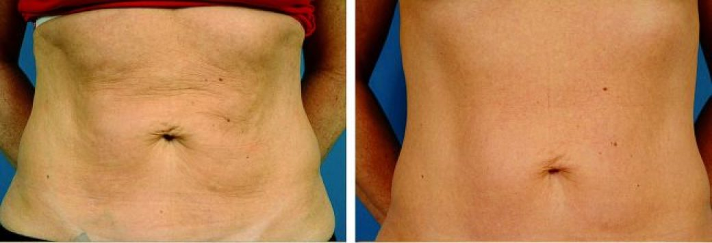 Thermage Tummy Tightening