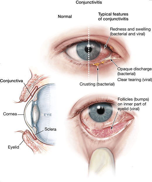 What Causes Inflammation In The Eye After Cataract Surgery