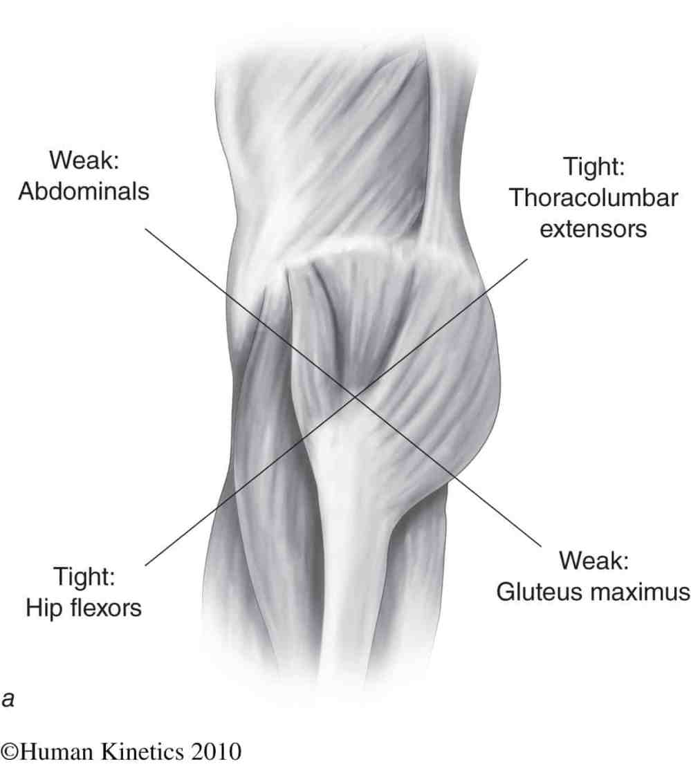 medium resolution of  muscle imbalance and anterior pelvic tilt