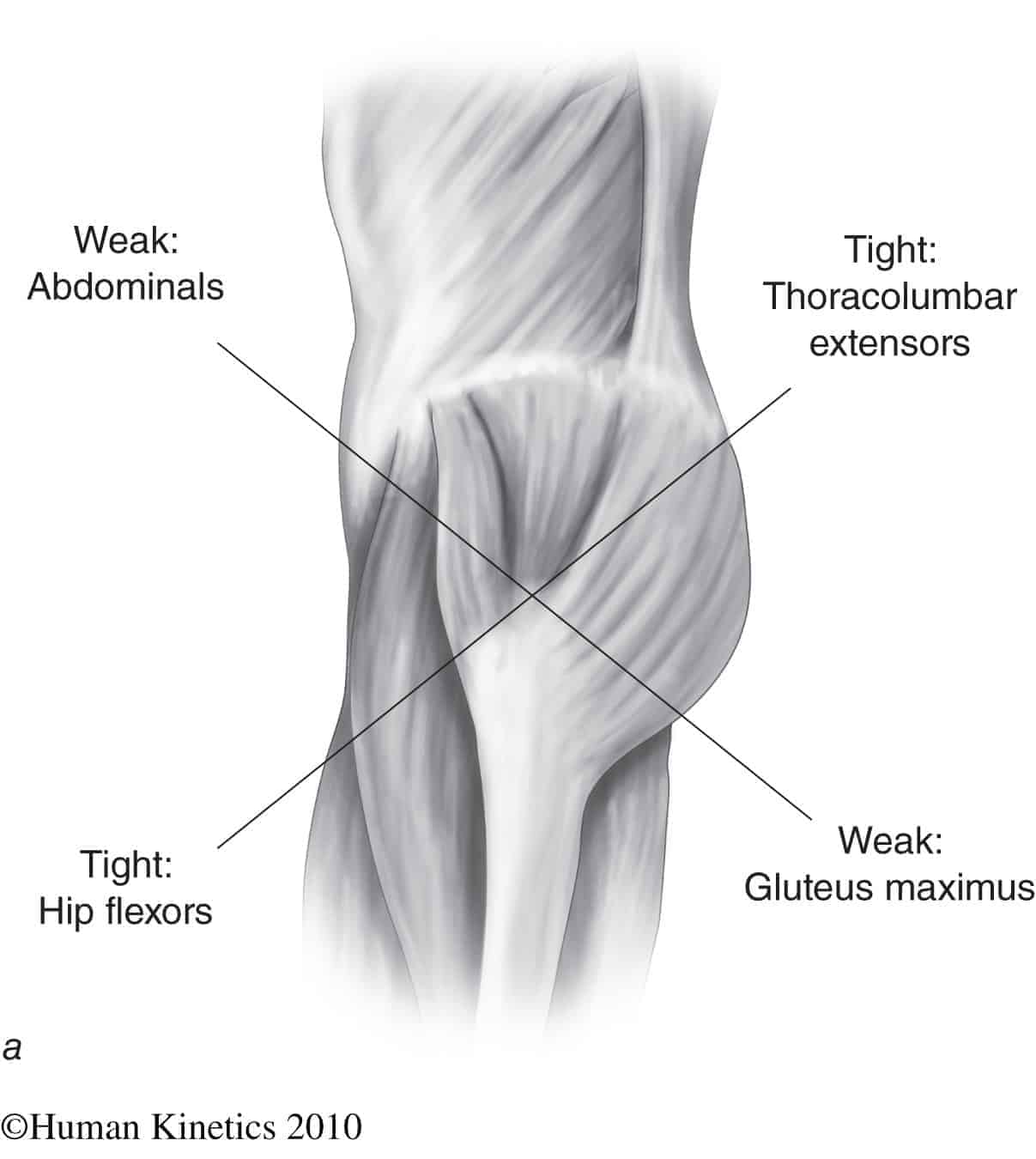 hight resolution of  muscle imbalance and anterior pelvic tilt