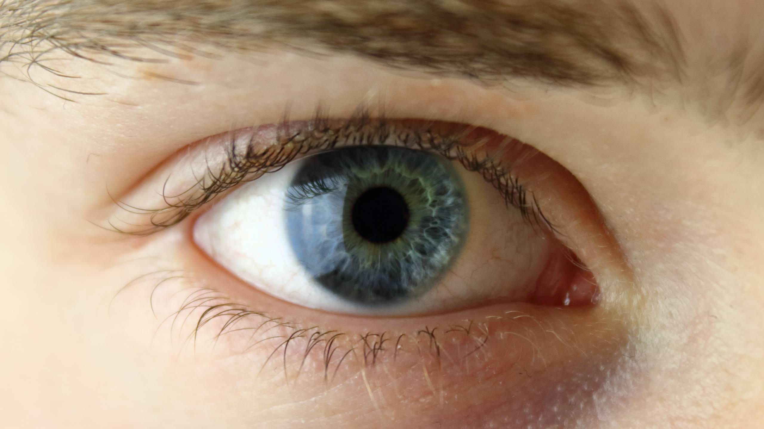 Ocular Herpes Can Be Treated But Not Prevented With A