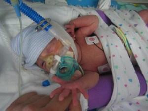 CPAP:  Continuous Positive Airway Pressure