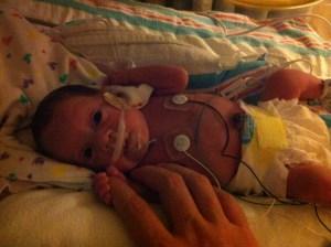 Evelyn, with a feeding tube