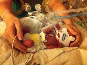 NICU bonding, two weeks after birth