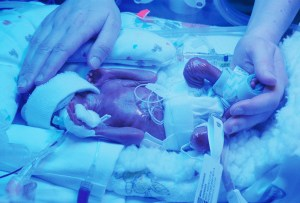 Our son Gabriel, a day after being born at 22 weeks and 6 days of gestation in 2012. He is under a bilirubin light to help break down toxins in his skin that his liver was too immature to deal with.