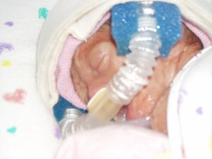 preemie NICU donating bloog