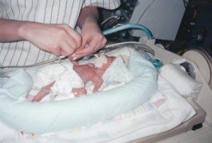 Loving My Scars: A Former Preemie's Story