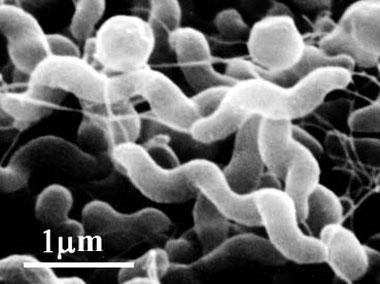 カンピロバクター菌の電子顕微鏡写真