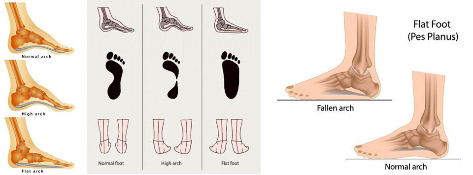 Posterior Tibial Tendon Dysfunction (PTTD) | sierraingersol