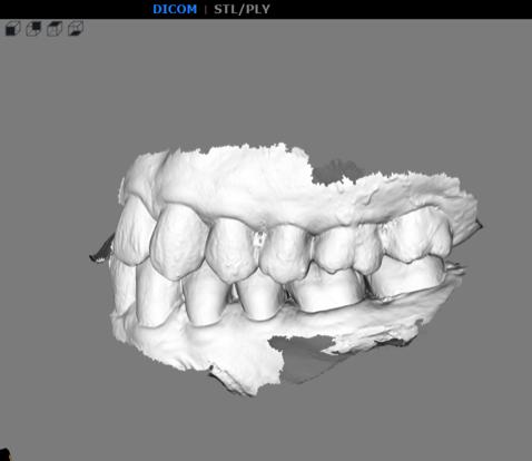 數位牙科時代植牙。省時環保的口掃機 - 怕看牙救星|竹北品悅牙醫