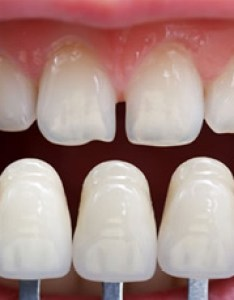 Closeup of teeth compared with color shading chart also herndon cosmetic dentistry porcelain veneers reston rh premierdentalcareva