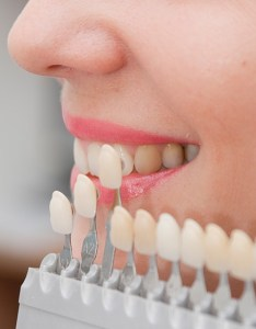 Closeup of smile compared with tooth color chart also waco porcelain veneers cosmetic dentist premier family dental rh premierdentalwaco