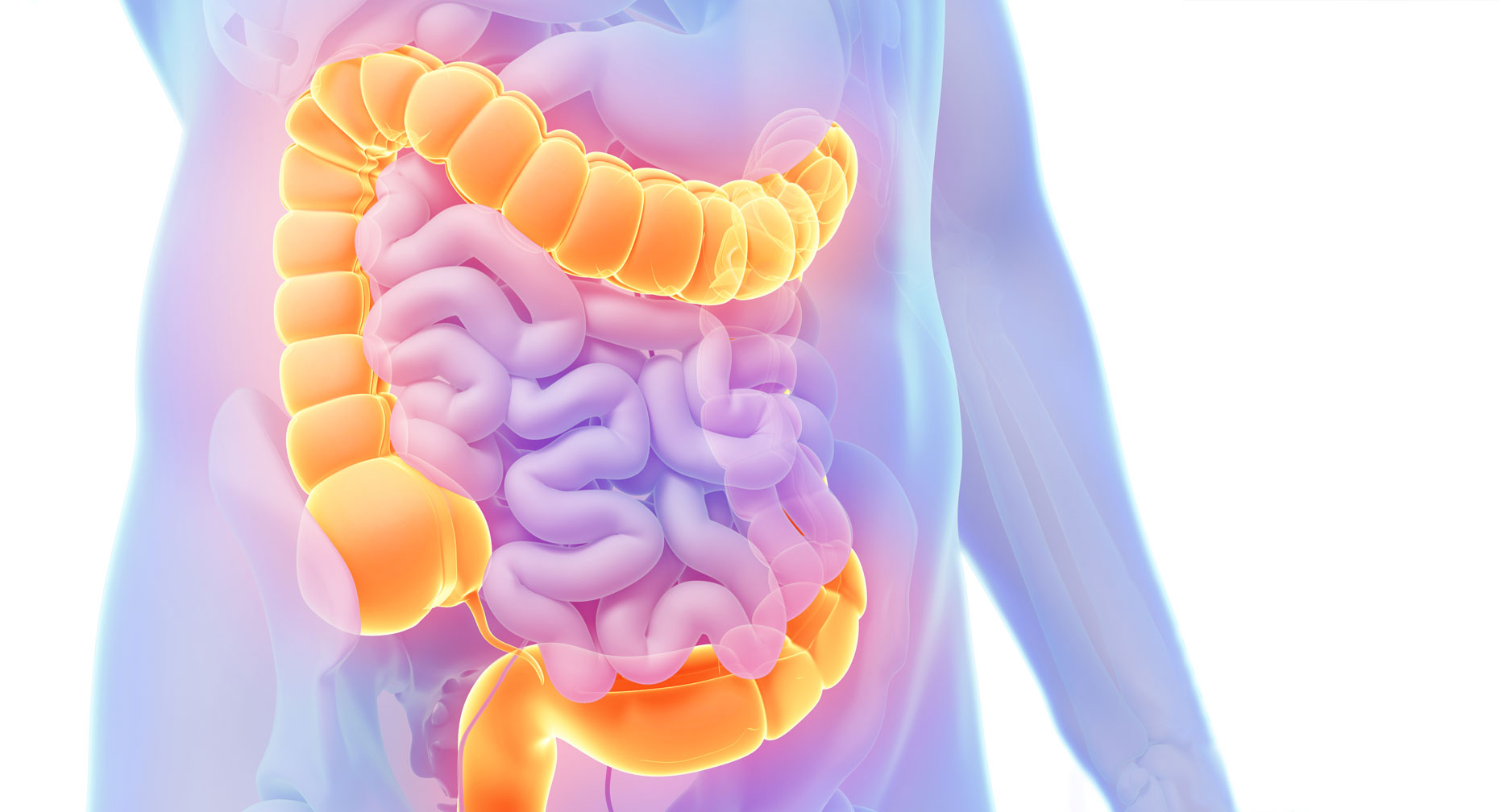 polyps colorectal cancer s early warning system large [ 1860 x 1008 Pixel ]
