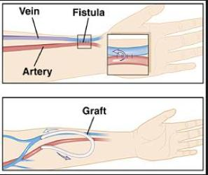 fistula-graphic