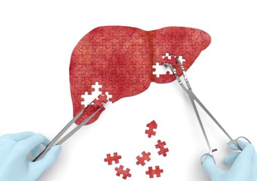 Liver Cancer Treatment - Premier Surgical Associates