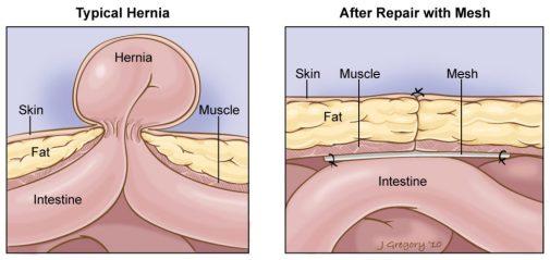 hernia repair