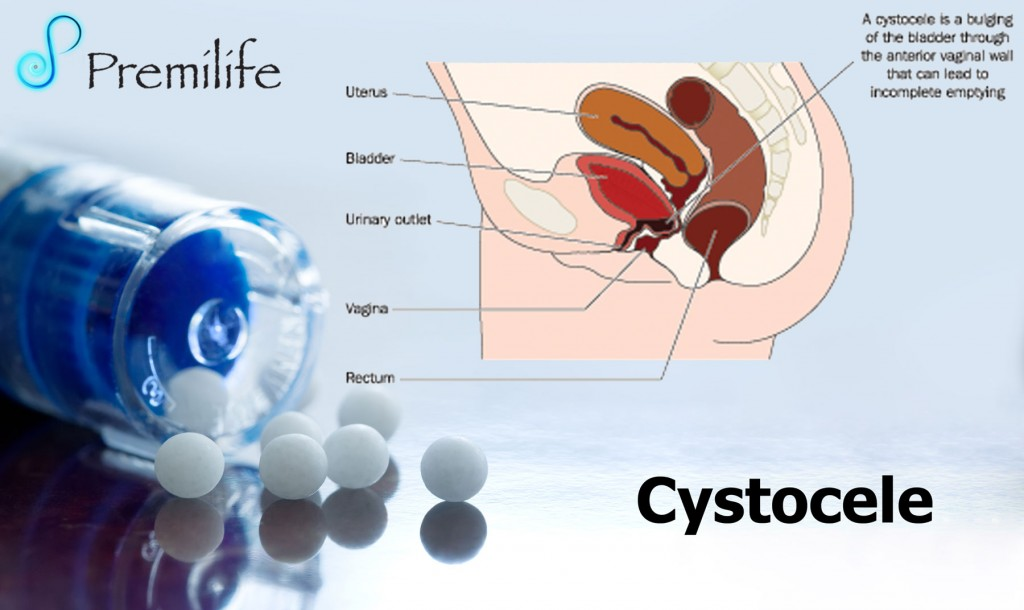 Cystocele  Premilife  Homeopathic Remedies