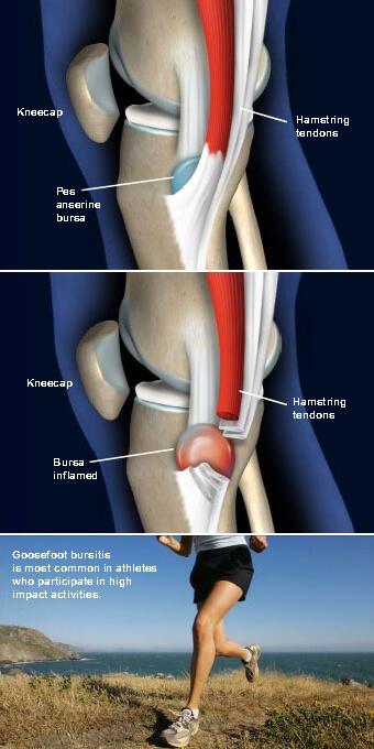 Goosefoot (Pes Anserine) Bursitis of the Knee: orthopedic doctor prescott az - DAVIS ORTHOPAEDICS