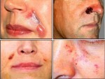Botched operations can leave swelling sores on the patient's face