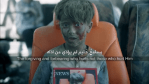 Verletztes Kind: Junge war Opfer von Assad-Angriff (Foto: youtube/zain)