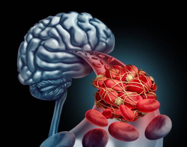 Hirnvenenthrombose,Gesundheit,Presse,News,Medien