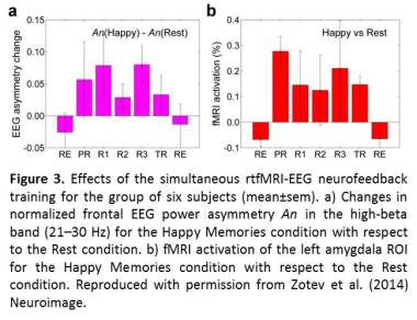 Integration of concurrent real-time fMRI and EEG data: Figure 3