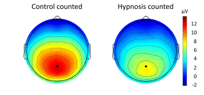 Fig. 4. Topographical maps for the P3b response to the to-be-counted stimuli pooled for all participants, visualizing P3b magnitudes that were significantly reduced in the hypnosis condition compared to the control condition.