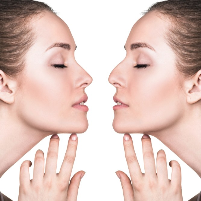 Important Things to Know About Rhinoplasty 1