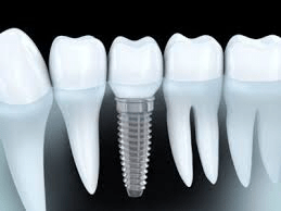 Cosmetic Implants Market to See Huge Growth in Future | 3M Health Care, DENTSPLY, Allergan, Aesthetic and Reconstructive Technologies 2
