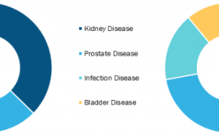 Urology Laser Fibers Market to Grow at a Robust CAGR of 3.2% During 2017-2025 According To Market Forecasts 2