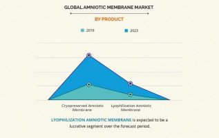 Rising Demand of Amniotic Membrane Market Will Hit 9.7% CAGR During Forecast Period 2017-2023 2