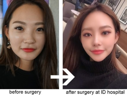 Snapchat Dysmorphia Plastic Surgery: What is it? 6