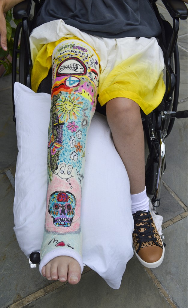 colorful creative female leg cast