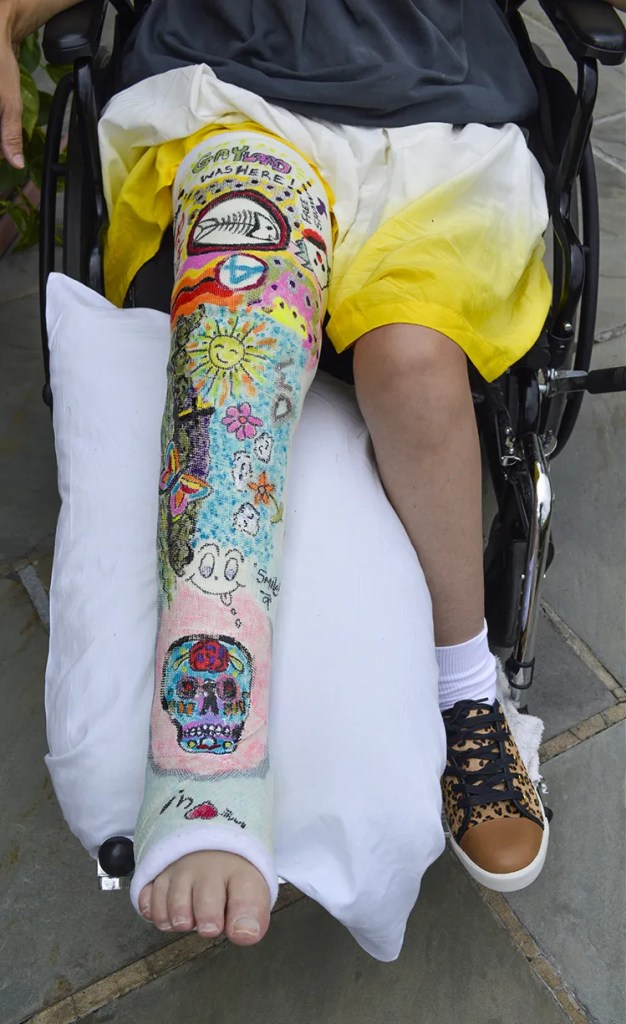Creative Art Leg Cast Female In Leg Cast Wheelchair Fashion Street Style Candy Dress Skirt