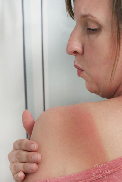 sunburned shoulder | Pretty Handy Girl