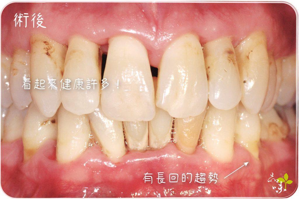 牙周病癥狀 及治療前後差異 黃頌恩醫師 - 新竹品味牙醫 牙科常見問題