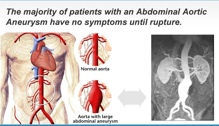 Abdominal Aortic Aneurysm Screening | Prevention
