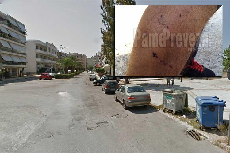 """Πρέβεζα: Νέα επίθεση σκύλου σε οδηγό δικύκλου αυτή τη φορά στο """"Πυροβολικό"""" – Ανάστατοι οι γονείς της περιοχής_5e04f02551efb.jpeg"""