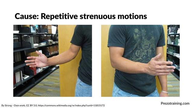 tennis-elbow-example-for-technical-presentations-1