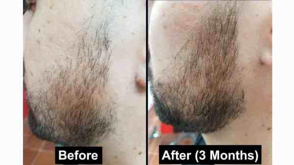 Before After Rogaine Grow Beard - imgMeta