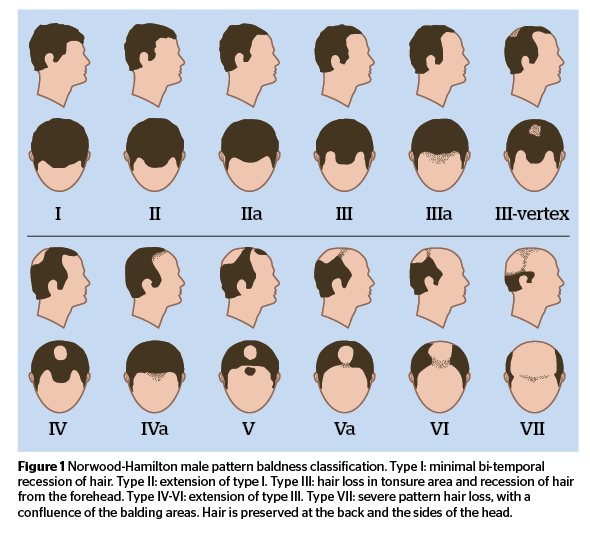 Treatments For Male Pattern Hair Loss PRIME Journal