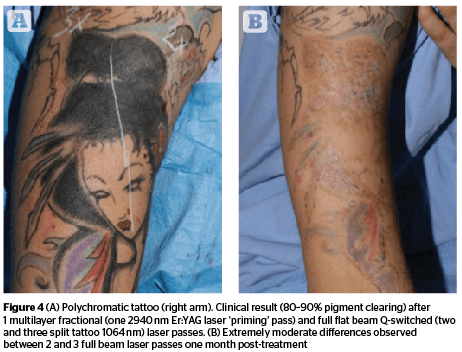 50 Cent Tattoo Removal Doctor