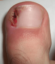 ingrown toenail remedies march