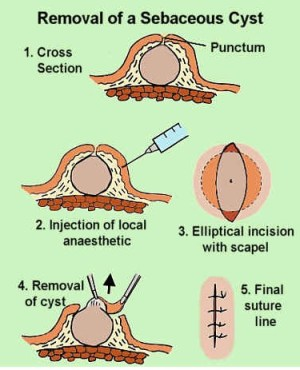 Sebaceous Cyst (Epidermal Cyst) – Pictures, Causes, Treatment and Removal